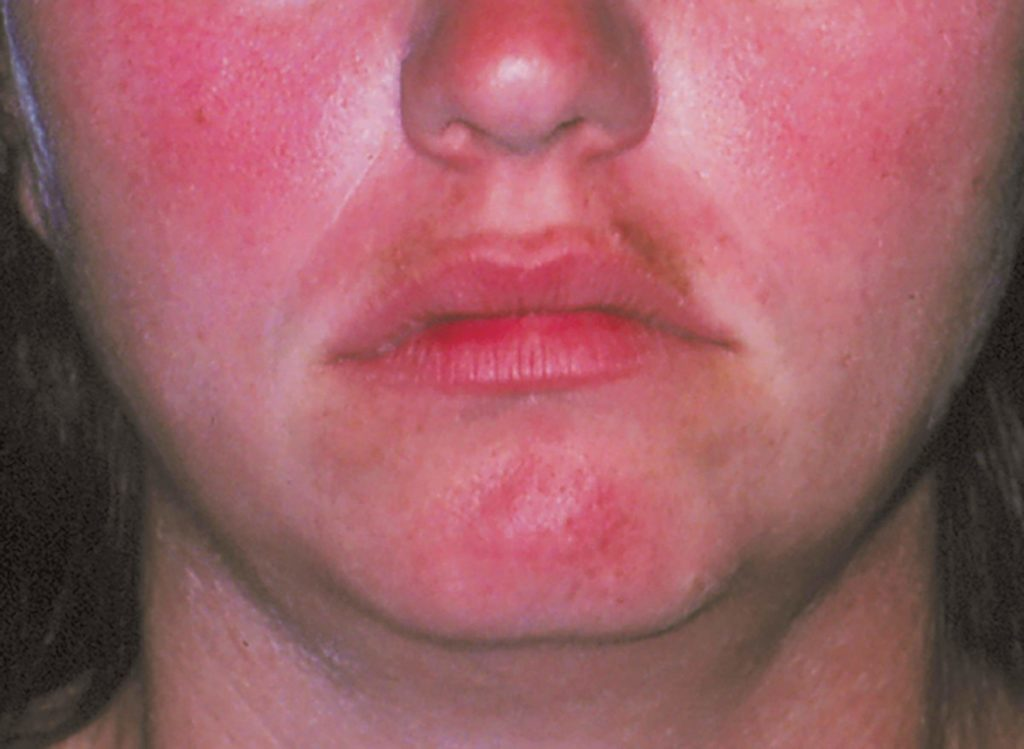 6 Rosacea Treatments that Can Help End Redness